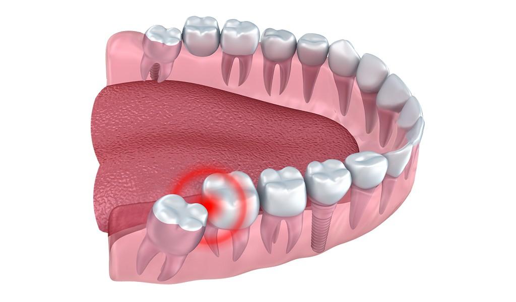 20'likleriniz Kâbus Olmasın: Gömülü 20'lik Diş Çekimi